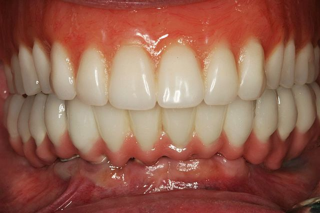 Dental Implant Treatment 1