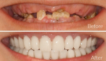 3 Types of Teeth Replacement 1