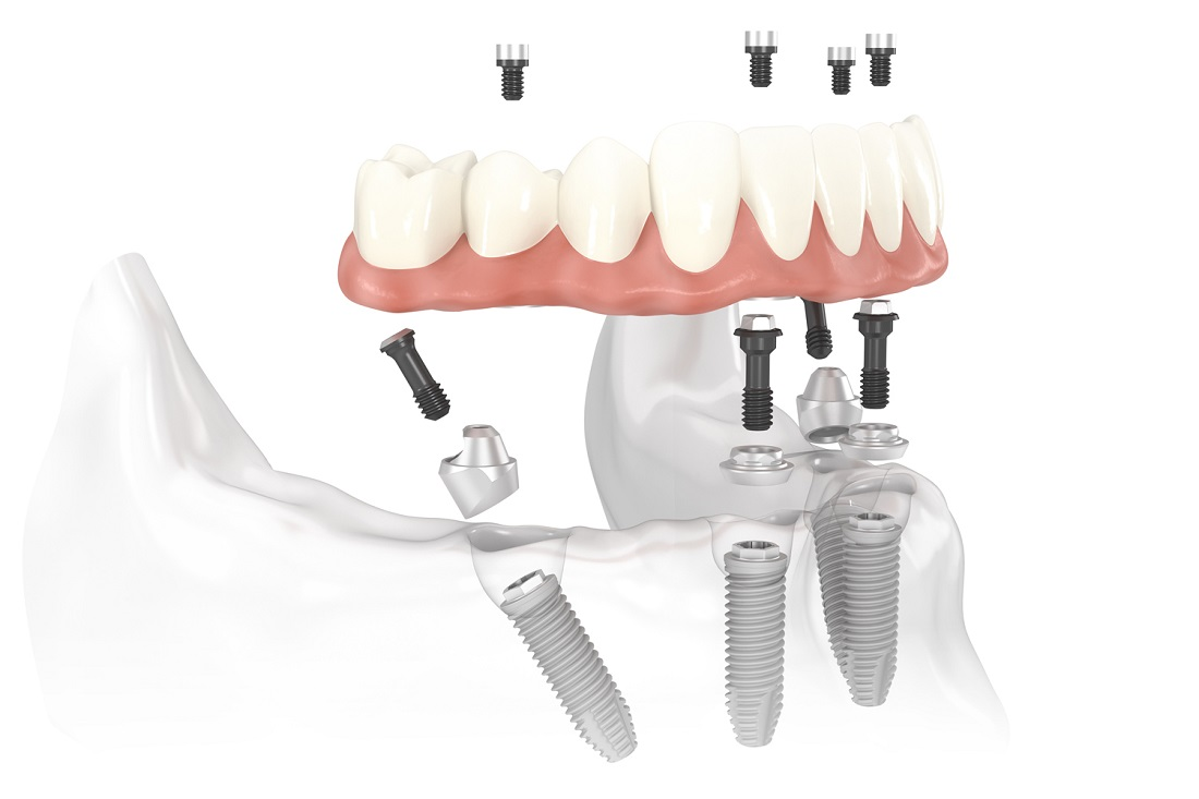 3 Things to Know About All-On-Four Dental Implants 1